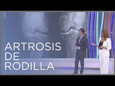 SHmorlja hernia en la columna cervical