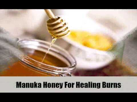 Video 7 Effective Home Remedies For Burns