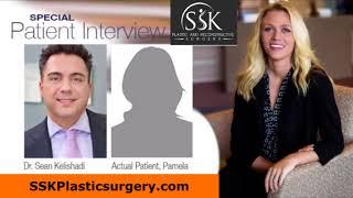 Dr  Sean Kelishadi Review  SSK Plastic Surgery Testimonial