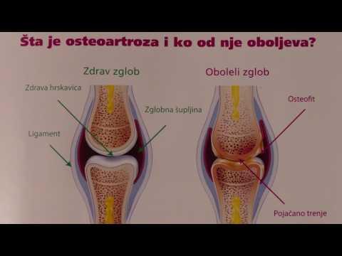 A vállízület ízületi gyulladásának artrózisa kezelése