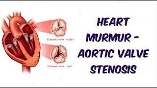 Heart Murmur-Mitral Regurgitation   Auscultation Sound !!! Complete