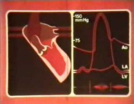 Anzeichen von Druck Hypertonie