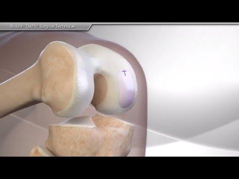 Injecții pentru durere în articulații alflutop Preț