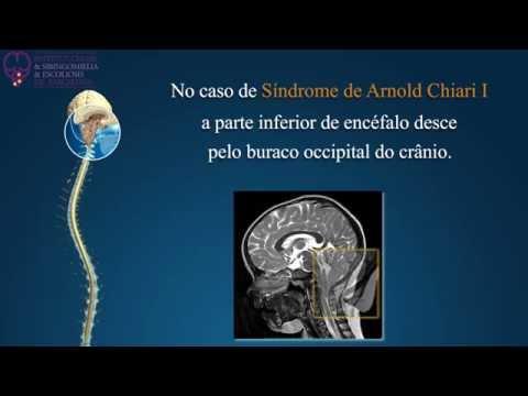 Recensioni dopo artroplastica