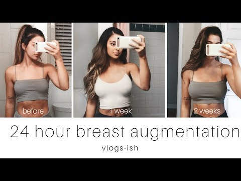 Belt matapos breast surgery
