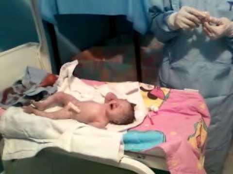 Il dorso da anestesia epiduralny fa male che fare