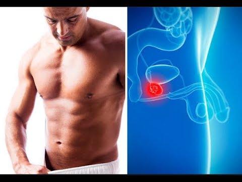 PSA per il cancro della prostata 14
