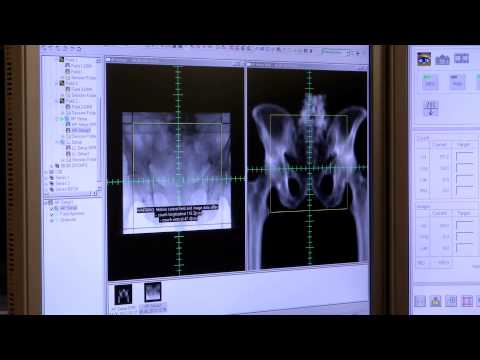 Léčba chronické prostatitidy