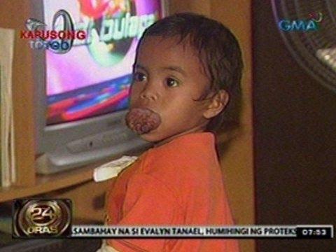 Kuko halamang-singaw sa paa