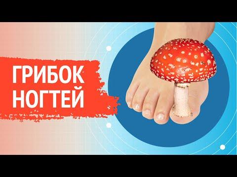 215  Лечение запущенной формы грибка ногтей