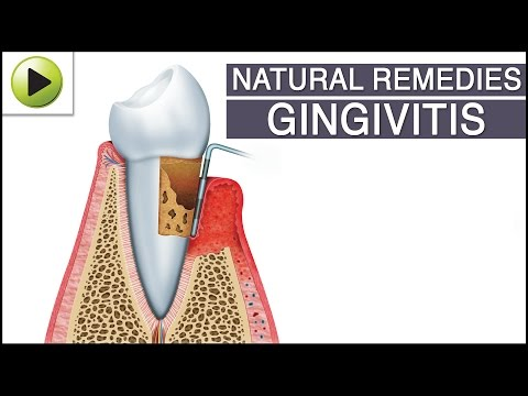 Video Gingivitis - Natural Ayurvedic Home Remedies