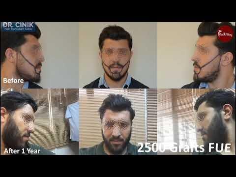 Hair Transplant by Dr Cinik Hair Transplant Clinic, Istanbul Turkey