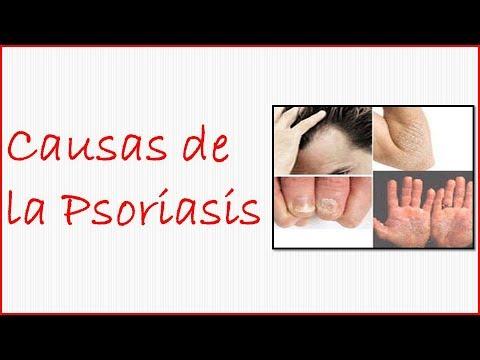 Todo sobre la psoriasis en las manos