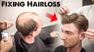 Mens Hairloss Treatment 2.0   Amazing Hairstyle Transformation - Does It Work?   BluMaan 2018