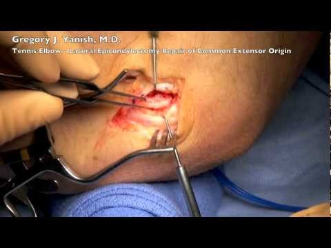 Tennis Elbow Lateral Epicondylectomy and Repair Common Extensor Origin