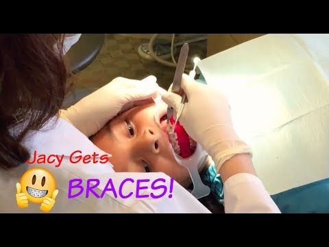 Jacy Gets Braces! l Seven JJGirls - YouTube