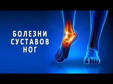 Симптомы и лечение болезней суставов ног