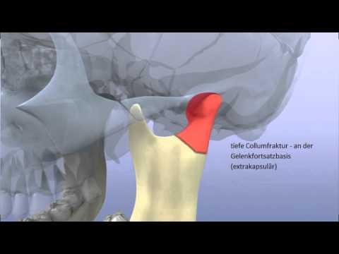 Muskelschmerzen in der Schulter und Nacken