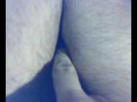 Quali sono le dimensioni della prostata