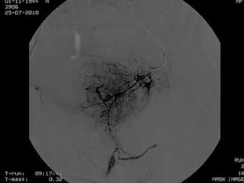 Diffuse Hyperplasie der Prostata Verkalkung