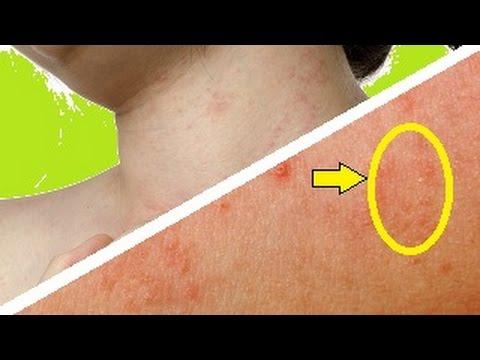 El ungüento a atopicheskom la dermatitis el foro