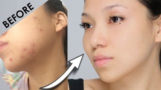 Remove Acne Marks | 3 Home Remedies (100% Works) With Results