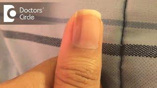What causes vertical black lines on fingernails - Dr. Aruna Prasad