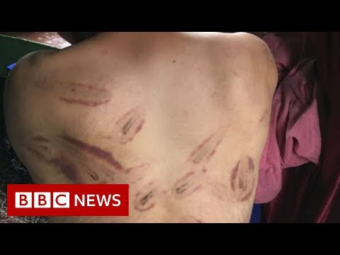 Beaten and tortured' by the Indian army - BBC News