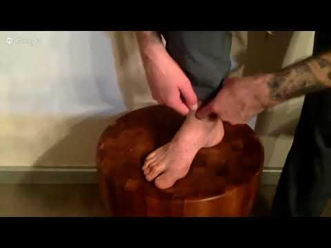Точечный массаж при варикозе нижних конечностей. Точки при варикозе