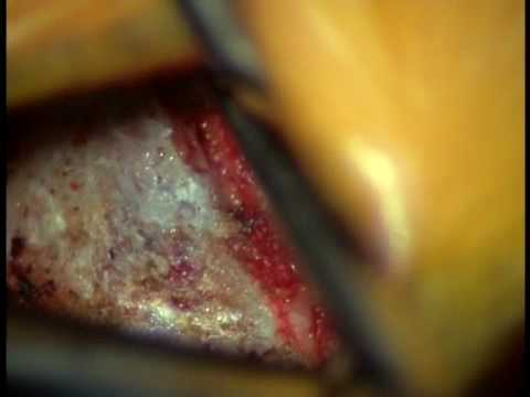 Video of L5-S1 Surgery Lumbar Microdiscectomy