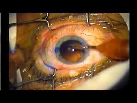 Pang-agham na mga artikulo sa laser facial resurfacing