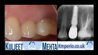 Failed Root Canal Treatment tooth replaced with Dental Implant.