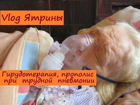 Гиперплазия предстательной железы симптомы и лечение