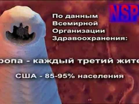 При какой температуре погибают яйца глистов в мясе