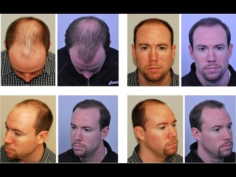 BEFORE & AFTER Hair Transplant: 6 MONTHS AFTER