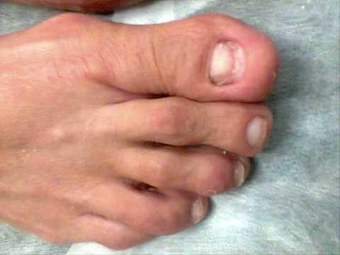 Si es posible sacar por la agua oxigenada el hongo en los pies