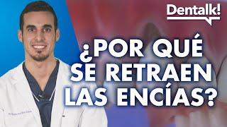 Encías retraídas: preguntas frecuentes - Dentalk! ©