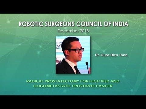 Radical Prostatectomy for Oligometastatic Prostate Cancer