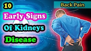Don't Ignore These Early Symptoms Of Kidney Disease
