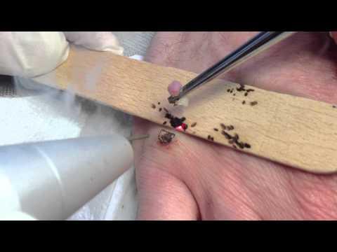 Comme choisir les bas selon le montant de la varicosité