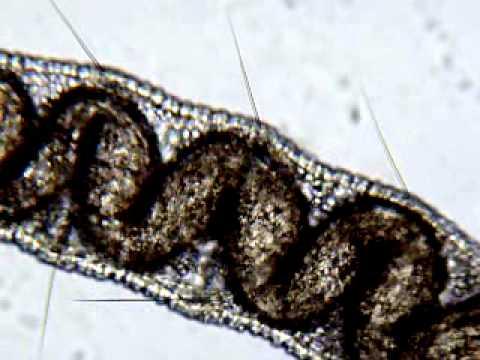 Ano ang gamot ay, mula sa mga adult worm