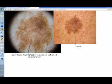 Rating ng pigment spots