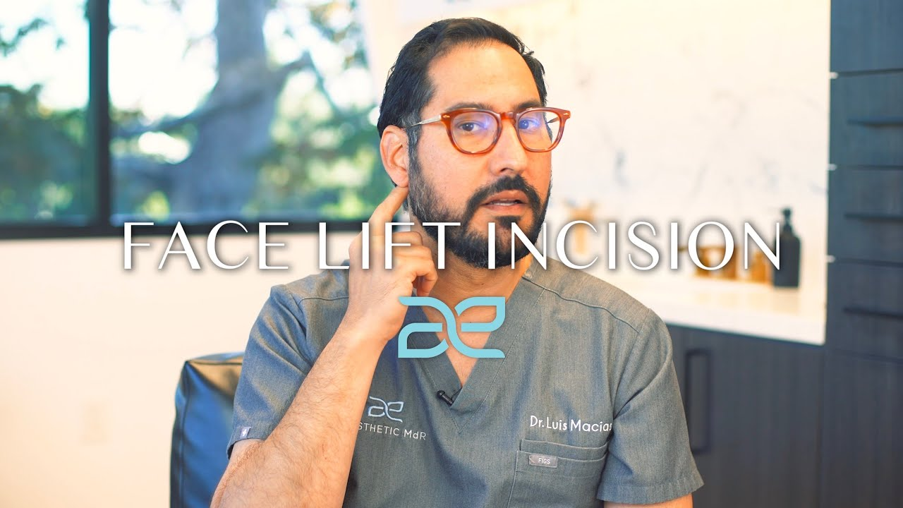 Dr. Macias talking about the placement for Facelift incisions