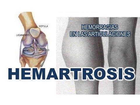 El corredor osteocondrosis