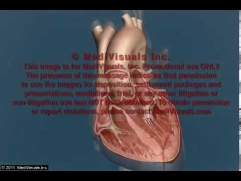 Zdrowe serce podczas kardioplegii