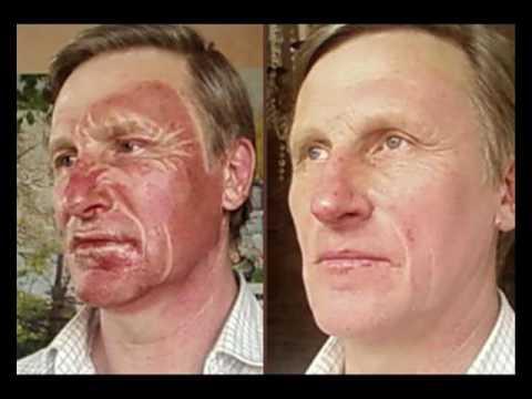 Сколько стоит убрать пигментные пятна лазером на лице