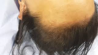 Female SMP Hairline Scalp Micropigmentation by El Truchan @ Perfect Definition