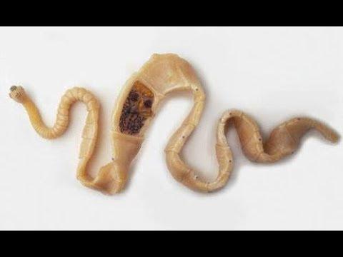 Гельминты в толстом кишечнике разновидности