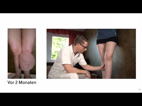 Wovon die Thrombophlebitis Videos