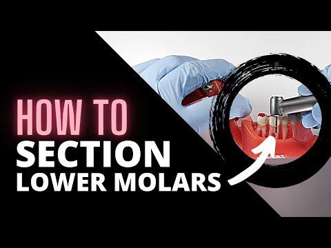 Tips For Sectioning Mandibular Molars